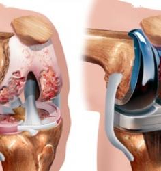 تعویض مفصل زانو چیست؟