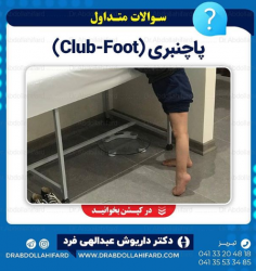 پاچنبری (Club-Foot)