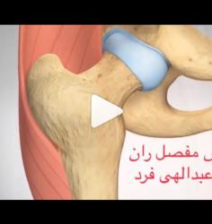 روش جراحی تعویض کامل مفصل ران چگونه است؟