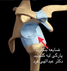 درمان آسیب بنکارتدر شانه