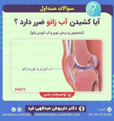 آیا کشیدن آب زانو ضرر دارد؟