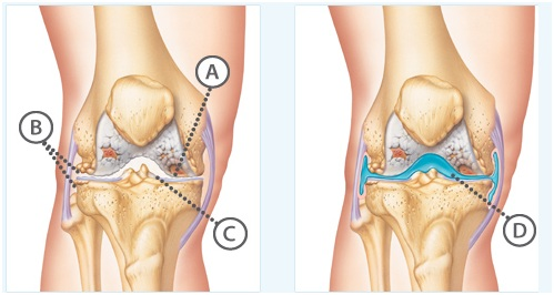 Knee arthritis and its symptoms