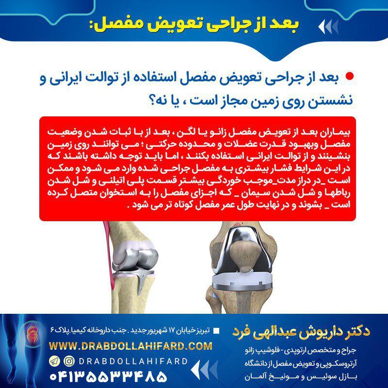 بعد از جراحی تعویض مفصل استفاده از توالت ایرانی و نشستن روی زمین مجاز است ، یا نه؟