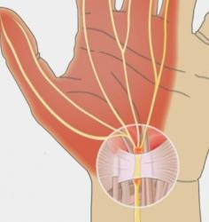 درمان جراحى تنگى كانال مچ دست