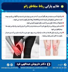 علایم پارگی رباط متقاطع زانو