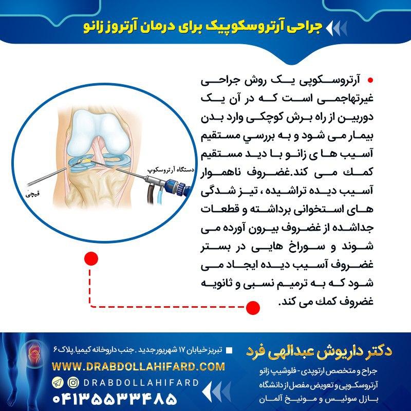 جراحی آرتروسکوپیك برای درمان آرتروز زانو